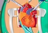 لعبة جراحة القلب جامدة جدا